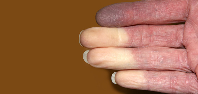 cold and numb hands and feet; raynaud's phenomenon- how to treat, Skeleton
