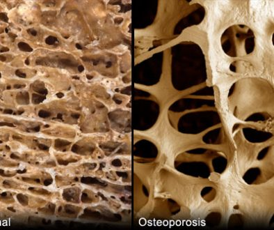 photo of the effects of osteoporosis